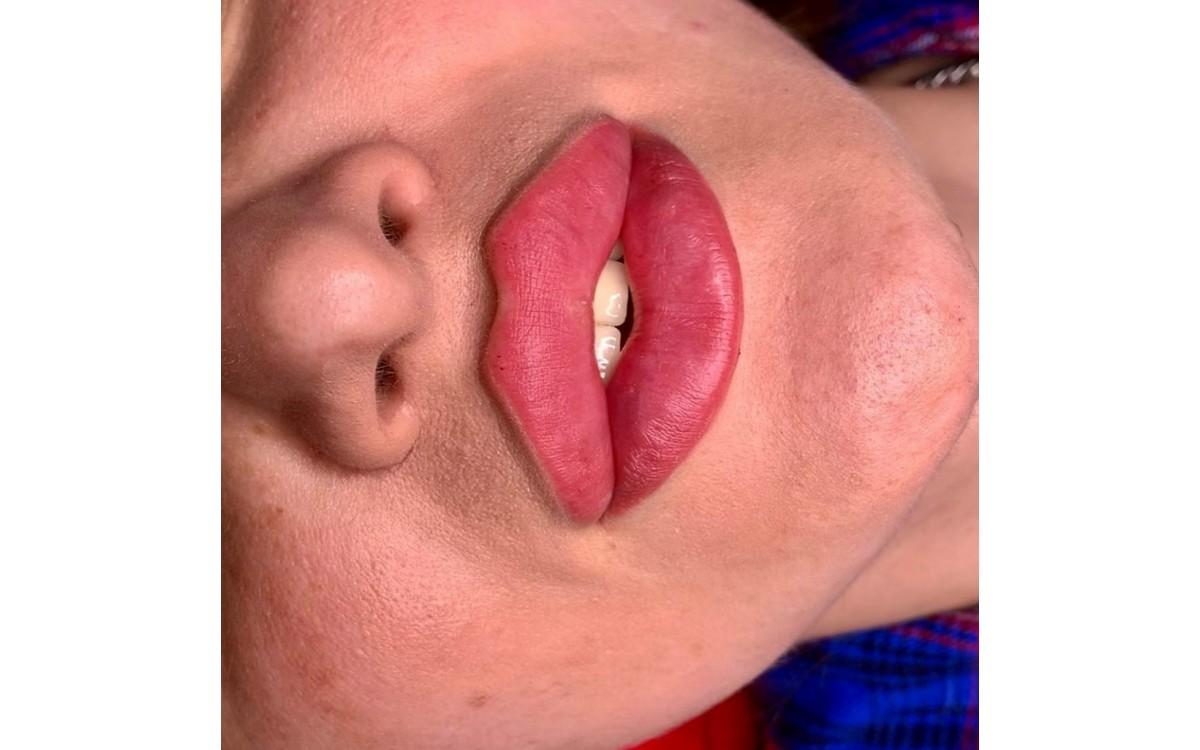 Увеличение губ по технике методике Гаруновой (дистанционно)